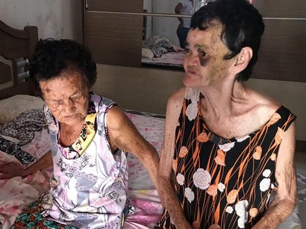 Sergipe: Idosa de 81 anos morre após ser espancada pela neta